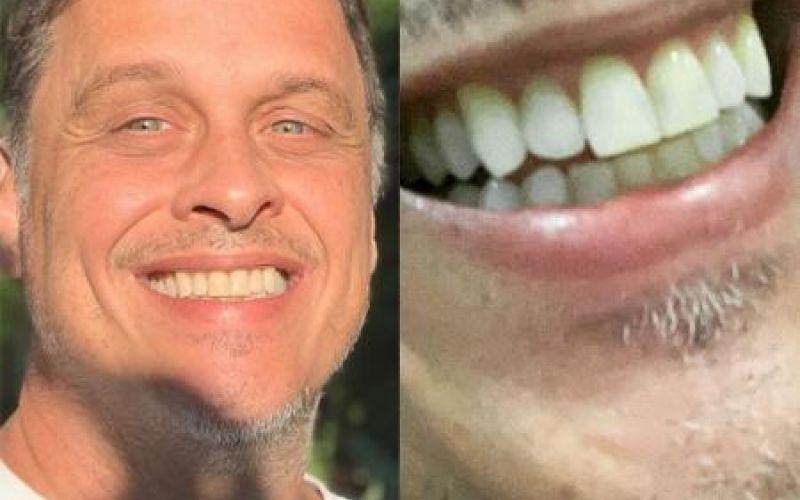 Guilherme Fontes sobre foto com 'sorriso amarelo': 'Filharada reclamou'