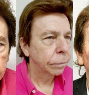 Nelson Rubens faz harmonização facial e mostra resultado